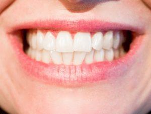 szeroki uśmiech z zadbanymi białymi żebami